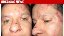 'NJ Housewives' Sued Over Bloody Attack on Cop
