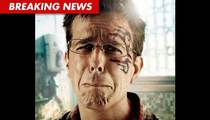 Ed Helms' Stunt Double Sues -- Claims 'Hangover' Accident Caused Brain Injuries