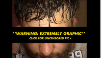 UFC Fighter Roy Nelson -- Look Ma, I Split My Face Open