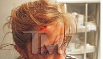 Chris Brown and Drake Fight -- Flying Bottle Cracks Girl's Head Open