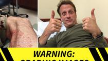 Tony Hawk -- GNARLY LEG INJURY ... During Skate Accident
