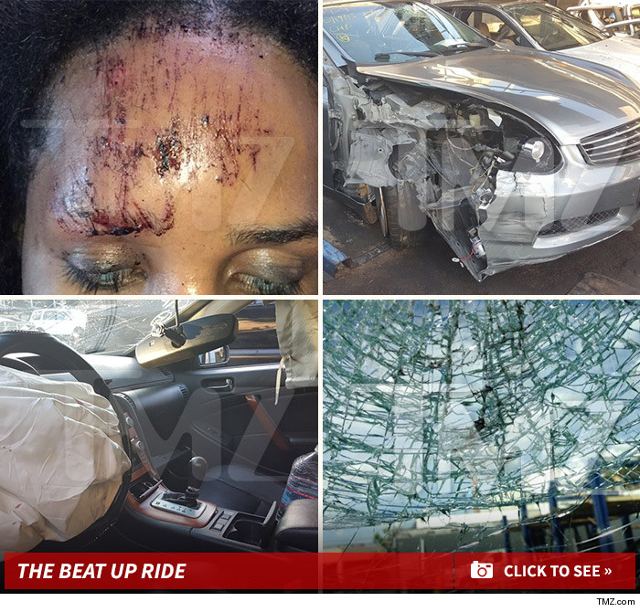 Antm Contestant Bruised And Bloody After Scary Car