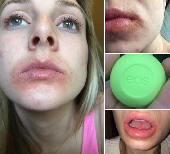 EOS Lip Balm Customers Say ... 'We'll Give You Lip, In Court!!!' (UPDATE)