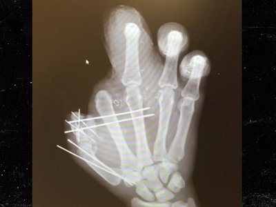 Jason Pierre-Paul -- Reveals Mangled X-Ray ... No Bones? No Problem! (PHOTO)
