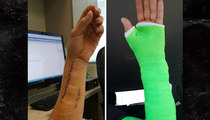 Dodgers' Josh Ravin -- Check Out My Franken-Arm ... After Broken Bone Surgery (PHOTOS)