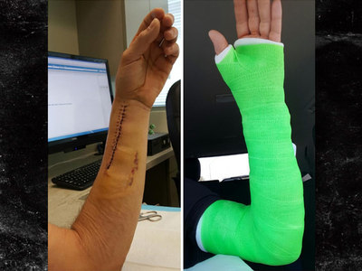 Dodgers' Josh Ravin -- Check Out My Franken-Arm ... After Broken Bone Surgery (PHOTOS)