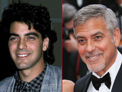 George Clooney -- Good Genes Or Good Docs?