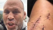 MMA's Wanderlei Silva -- Stitches, Scars, Broken Helmet ... After Brazil Hit & Run (VIDEO)
