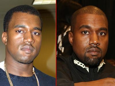 Kanye West -- Good Genes or Good Docs?