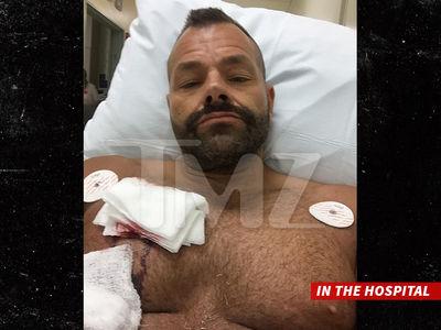 Jeremy Piven Bike Victim -- I Got Cut Deep, But I'm Not Suing (PHOTO GALLERY)
