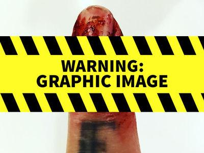 Travis Barker -- Dammit ... Feeling This Finger Grind Off SUCKS!!! (PHOTO GALLERY)