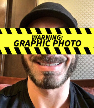 Austin Aries -- The Gruesome Eye Injury