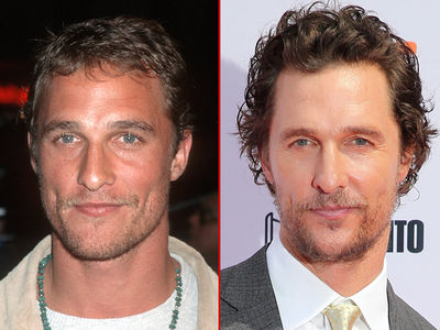 Matthew McConaughey: Good Genes or Good Docs?