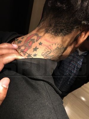 Matt Barnes -- Photos Of Nightclub Wounds ... I'm the Real Victim