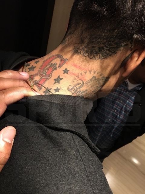 <p><strong>TMZ Sports</strong> has obtained photos of the injuries Matt Barnes claims he sustained in the NYC nightclub brawl early Monday morning ... injuries he claims prove he was NOT the aggressor. </p> <p>The photos were literally taken minutes after Barnes left Avenue Nightclub around 3:30 AM -- and show scratches and minor cuts to the front and back of his neck. </p>