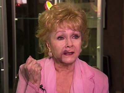 Debbie Reynolds Bares Huge Face Bruise In 'Bright Lights' Documentary (VIDEO)