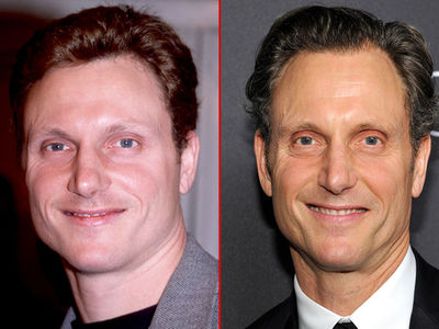 Tony Goldwyn: Good Genes or Good Docs?