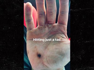 Bryce Harper's Swing Really Is Blistering (GROSS PHOTO)