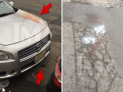 Fetty Wap Robbery, Bloody Crime Scene Images (PHOTOS + VIDEO)