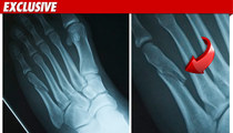 Ricky Romance: Man-Slapping Bouncer Broke My Foot!