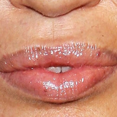 Whose luscious lips?