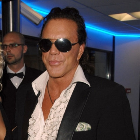 Mickey Rourke -- 9 1/2 cc of botox.