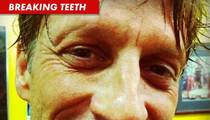 Tony Hawk -- Oops, I Broke My Face!