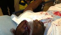 Chris Brown's Bodyguard Suffers MASSIVE Head Wound in Nightclub Brawl