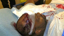 Chris Brown's Bloody Bodyguard -- Hit By Friendly Fire