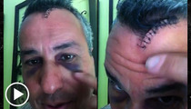 'Sell This House: Extreme' Star -- Mirror, Mirror ... Smashed Me In the Face