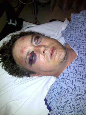 Jason London -- I'm the REAL Victim ... They BROKE My Face