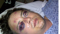 Jason London -- I'm the REAL Victim ... They BROKE My Face [photo]