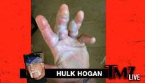 Hulk Hogan -- Hand Burning Accident Was 'Dumbest Thing I've Ever Done'