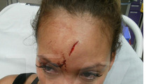 Evelyn Lozada's Bloody Head Gash After Chad Johnson Fight [PHOTOS]