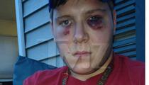 John Mellencamp's Sons -- Victim's Pulverized Face [PHOTOS]