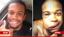 Delino DeShields Jr. -- MY FACE IS BACK TO NORMAL .. After Baseball Obliterated My Cheek