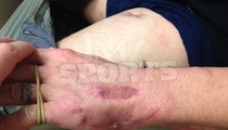 UFC Star Joe Riggs -- My Gunshot Wound Healed ... Check Out My New Scars