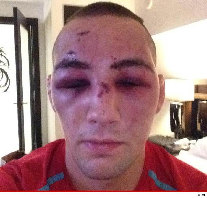 UFC's Rory MacDonald -- Worst Hangover Ever ... Check Out