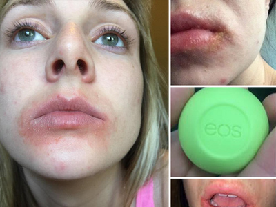 EOS Lip Balm -- Customers Say, 'We'll Give You Lip, In Court!!!' (UPDATE)