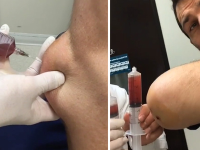 UFC's Luke Rockhold -- Disgusting Elbow Draining Video ... Is Kinda Awesome