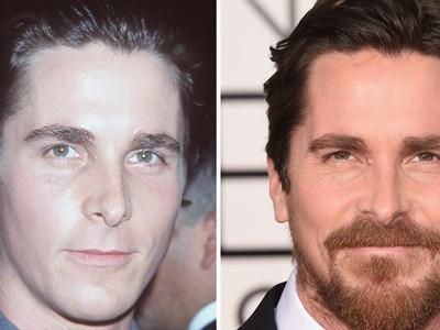 Christian Bale -- Good Genes Or Good Docs?