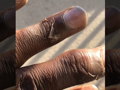 Seahawks' Kam Chancellor -- I Have Disgusting Iguana Hands ... From Freezing Playoff Game