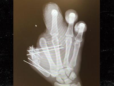 Jason Pierre-Paul -- Reveals Mangled X-Ray ... No Bones? No Problem! (PHOTO)