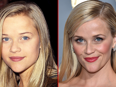 Reese Witherspoon -- Good Genes or Good Docs?