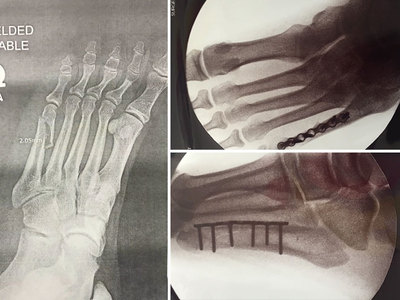 Axl Rose -- I Broke My Foot!! Show Will Go On with Twists (X-RAYS & VIDEO)