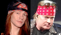 Axl Rose -- Good Genes or Good Docs?!