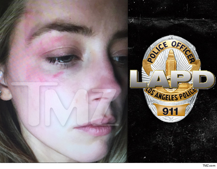 Amber Heard: Cops Say No Evidence of Injuries