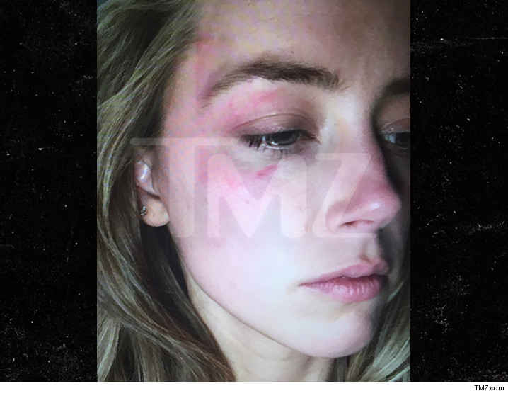 amber heard witnesses say no facial bruising days after