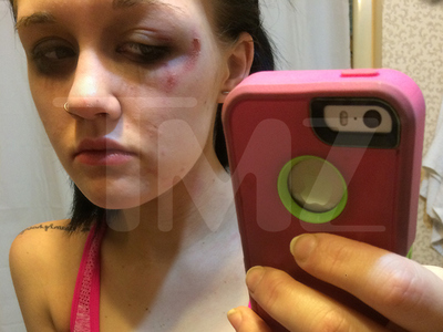 '16 & Pregnant' Star Jordan Cashmyer -- I Got Wasted and Busted My Face ... Time for Rehab (PHOTOS)