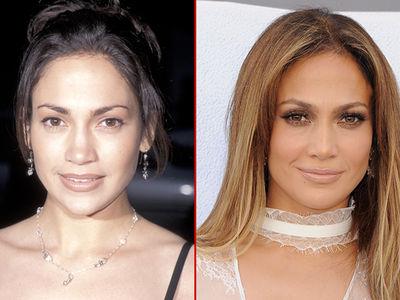 Jennifer Lopez -- Good Genes Or Good Docs?